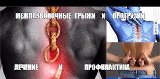 MEZHPOZVONOCHNYE-GRYZHI-GRUDNOGO-i-SHEJNOGO-OTDELOV-POZVONOCHNIKA-Lechenie-i-Profilaktika